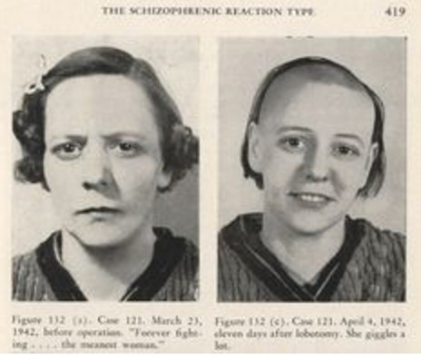 lobotomy-before-and-after
